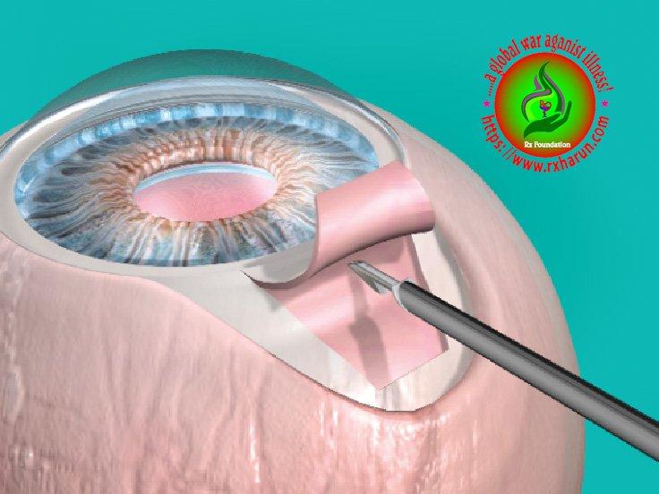 eye diseases Glaucoma Surgery
