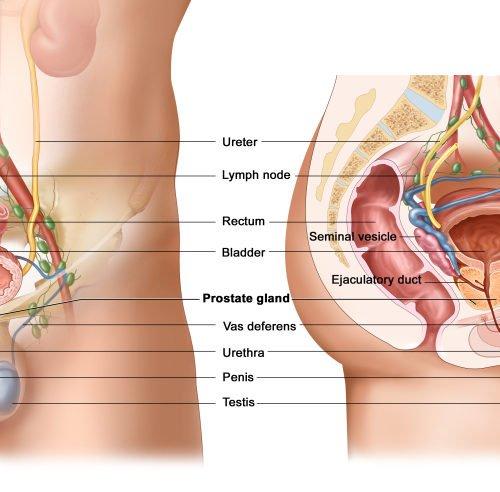 Appendicitis Causes